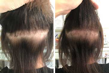 Can Hair Extensions Damage Hair